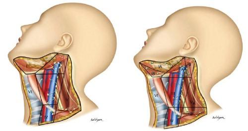 סרטן הפה